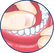 Slide the floss between your teeth and wrap it into a C shape around the base of the tooth and gently under the gumline. Wipe the tooth from base to tip two or three times