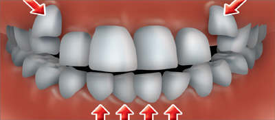 Crowded or Overlapped teeth